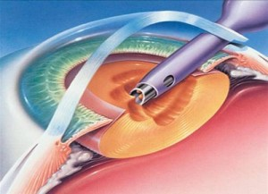 Cataract Surgery Phacoemulsification